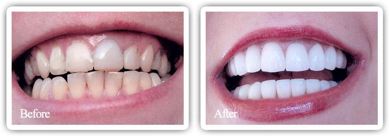 full-mouth-reconstruction-2.jpg