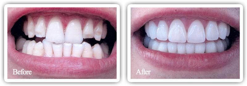 full-mouth-reconstruction.jpg